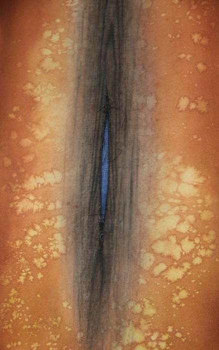 'Piñudi barrena', artea baino gehiago - 10